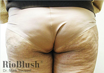 Cellulite marks before