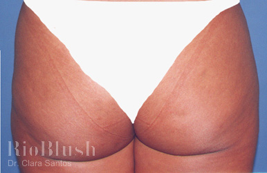 Stretch marks after